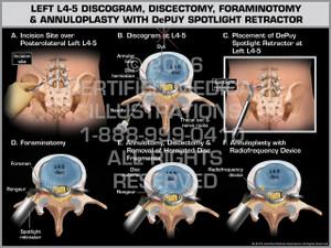 Exhibit of Left L4-5 Discogram, Discectomy, Foraminotomy & Annuloplasty with DePuy Spotlight Retractor