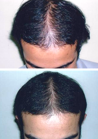 vida hair treatment - before and after 6 months (man)