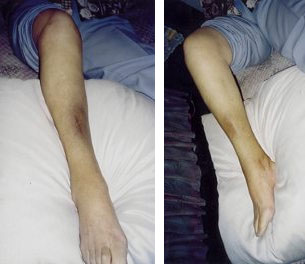 genesen-acutouch-skin-healer.jpg
