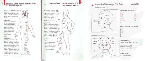 Genesen Acutouch User's Manual $20- Revolutionary Pain