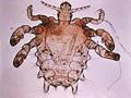 pediculosis-pubis.jpg