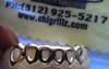 ChiGrillz Style-y0600 6 Cap Open Face Gold Grills