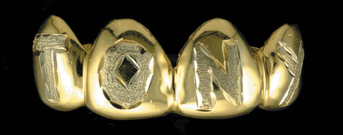 Chigrillz Letter Grillz Style-0207 4 Goldteeth Caps with stone finish name tony engrave design grillz