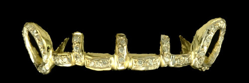 Chigrillz Diamond Grillz Style-0333 6 gold teeth caps with 39 Small round Diamonds Open Face and gap fillers and bridge bars