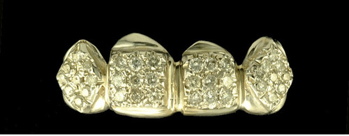Chigrillz Diamond Grillz Style-0336 4 White gold caps with 36 Diamond (s)