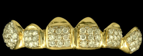 Chigrillz Diamond Grillz Style-0340 6 Gold Caps with 52 diamonds