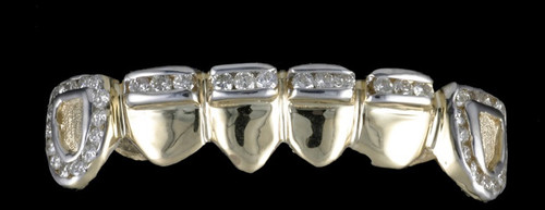 Chigrillz Diamond Grillz Style-0378 6 Gold Caps with 46-2 point stones channel setting gold teeth
