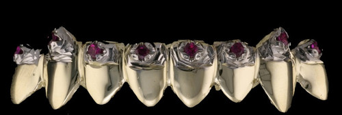 Chigrillz Diamond Grillz Style-0395 8 gold caps with 8-4 point rubies and fangs