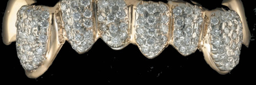 Style-0457 8 cap grillz icey 72 diamonds and 2 caps all gold solid style