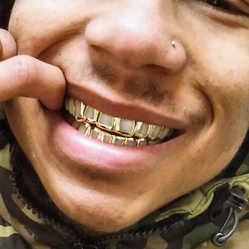 Grillz Style-y0600 6 Cap Open Face Gold Grills - Chigrillz