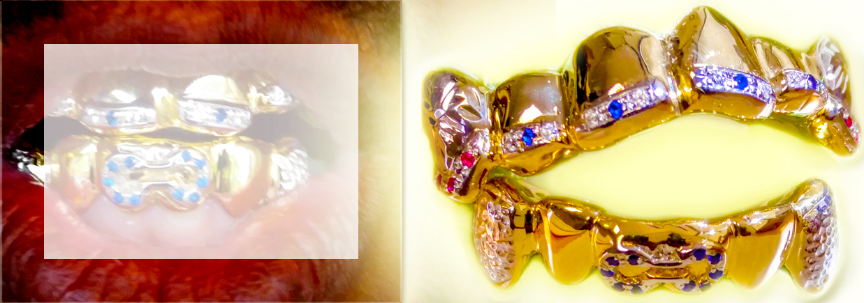 Diamond Grillz made by Chigrillz are easy to customize.  On product pages you can add diamonds to any set we have.