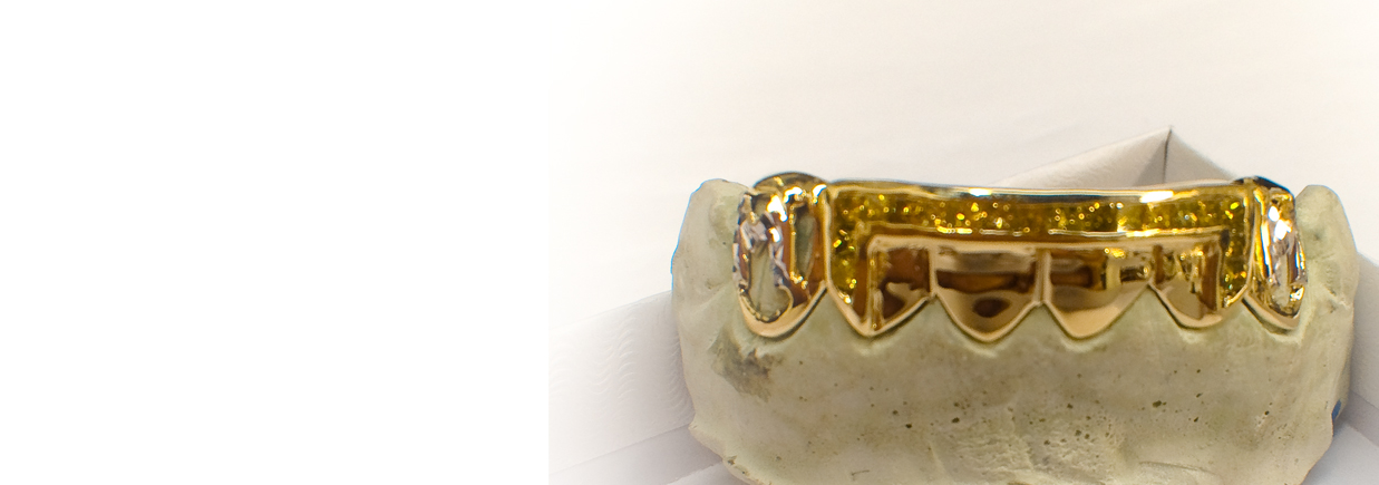 Chi Grillz Gold and Lemon Dust 7 Channel Princess Cuts