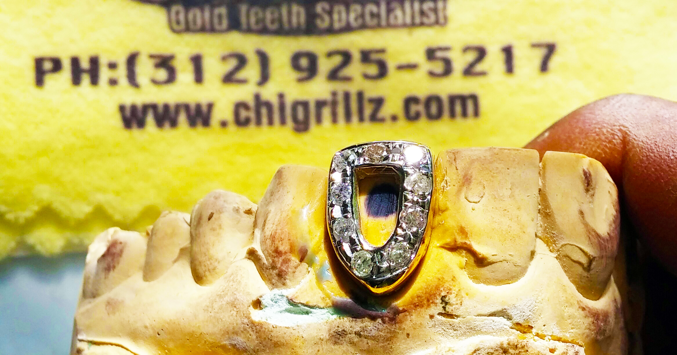 Buy Grillz Gold teeth by the number of teeth you want your gold grill to cover