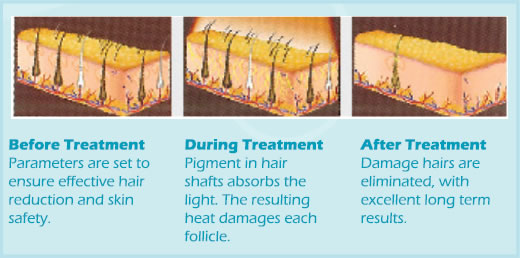 ipl-treatment-hair-removal-how-it-work.jpg
