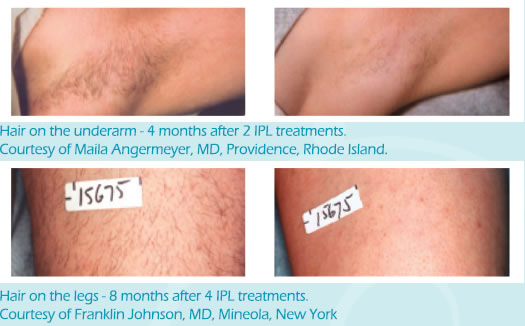 le-beau-ipl-permanent-hair-removal.jpg