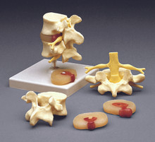Flexible Lumbar Vertebral Column with Herniated Disc