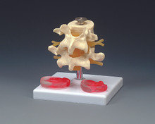 Budget Lumbar Vertebrae with Interchangeable Discs