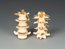 Lumbar Vertebrae - Four Part