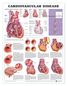 Reference Chart - Cardiovascular Disease