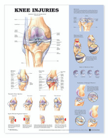 Reference Chart - Knee Injuries