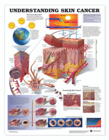 Reference Chart - Understanding Skin Cancer