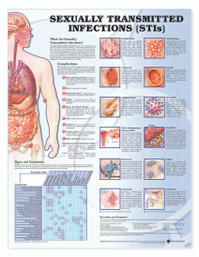 Reference Chart - Sexually Transmitted Infections (STIs)