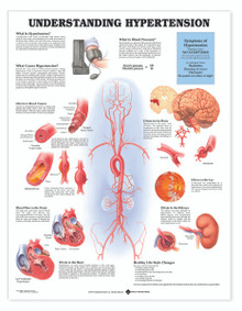 Reference Chart - Understanding Hypertension