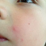 Picture of molluscum contagiosum on the face of a child.