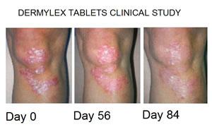 dermylex-clinicalsml-1-.jpg
