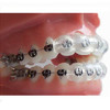 Orthodontic Lip Guard Protector Mouthpiece Covers (Pk of 10)