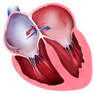 Heart with Atrial Septal Defect