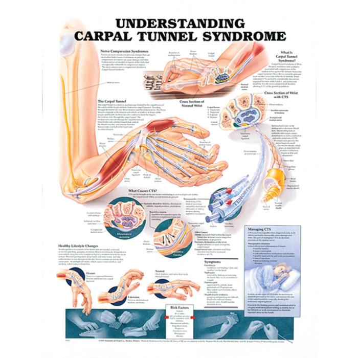 "UNDERSTANDING CARPAL TUNNEL SYNDROME CHART 20"" W X 26"" H, LAMINATED"