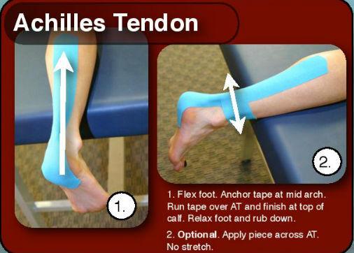 achilles-tendon-1-.jpg