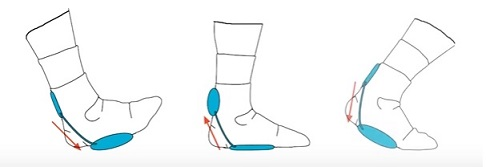 aircast-airheel-ankle-brace-4.jpg