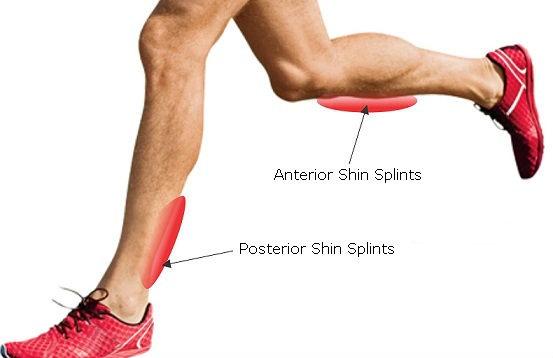 shin-splints.jpg