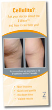 Zimmer Z Wave Pro Waiting Room Brochure – Cellulite