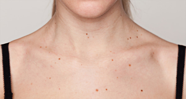 The ABCDEs of Getting to Know Your Moles