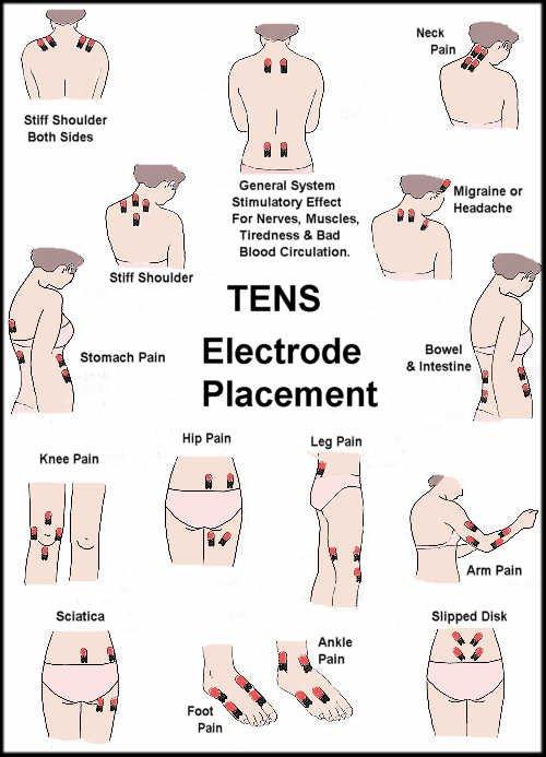 Tens Unit Electrode Placement Guide border=