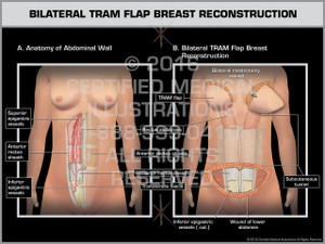 Exhibit of Bilateral TRAM Flap Breast Reconstruction 1 - Print Quality Instant Download