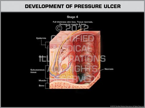 Exhibit of Development of Pressure Ulcer - Stage 4