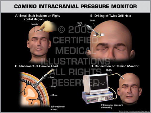 Exhibit of Camino Intracranial Pressure Monitor Male