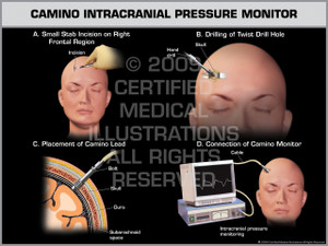 Exhibit of Camino Intracranial Pressure Monitor Female