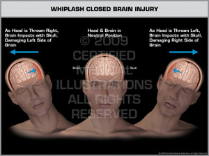 Exhibit of Whiplash Closed Brain Injury Male