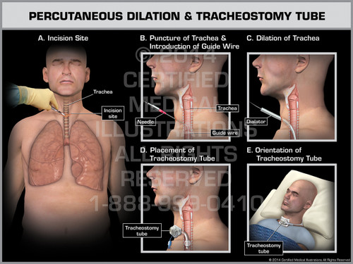 Exhibit of Percutaneous Dilation & Tracheostomy Tube Male