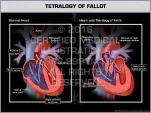 Exhibit of Tetralogy of Fallot
