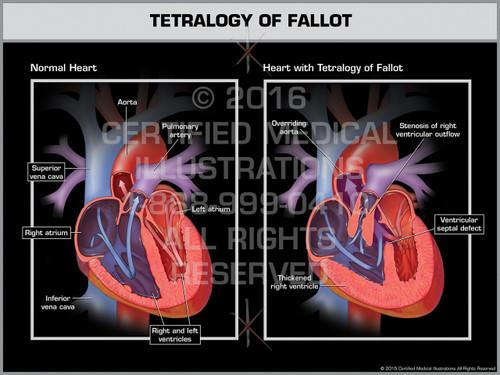 Exhibit of Tetralogy of Fallot
