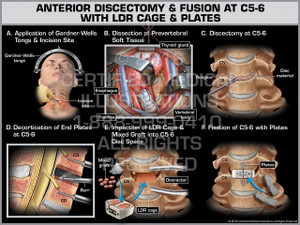 Exhibit of Anterior Discectomy & Fusion at C5-6 with LDR Cage & Plates - Print Quality Instant Download