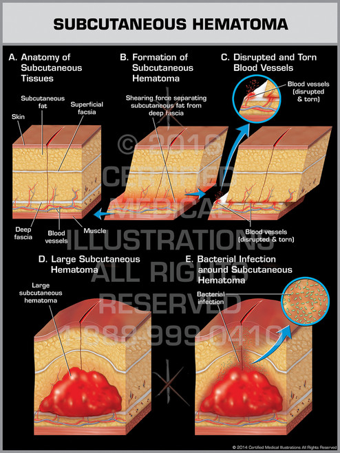Exhibit of Subcutaneous Hematoma - Print Quality Instant Download