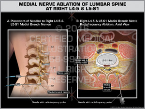 Exhibit of Medial Nerve Ablation of Lumbar Spine at Right L4-5 & L5-S1 - Print Quality Instant Download