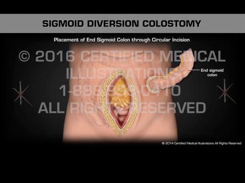 Animation of Sigmoid Diversion Colostomy - Medical Animation